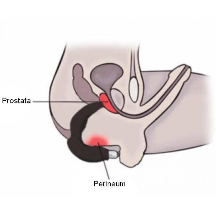 stymulator prostaty