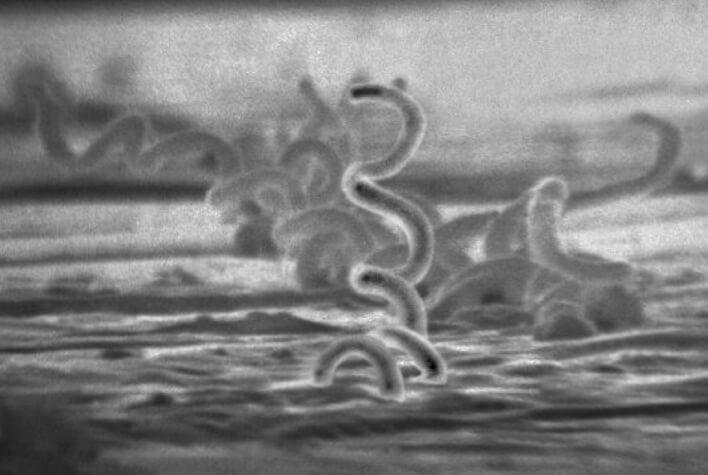 kiła, syfilis, testy domowe