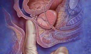 masaż prostaty, poradnik